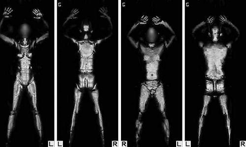 Boston logan blazes the full body scanner trail airport tsas original layout for ait equipment at boston logan reduced its number of x ray machines but the airport worked with tsa to avoid eliminating any x ray solutioingenieria Images